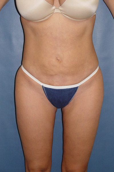 Liposuction Before & After Patient #1151