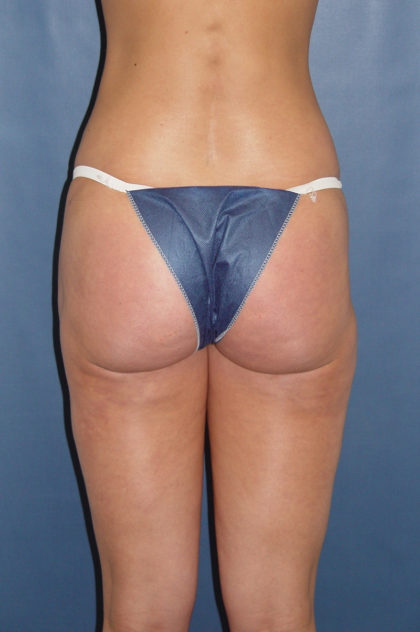 Liposuction Before & After Patient #1186