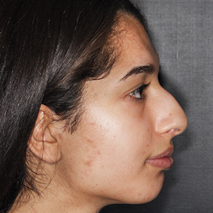 Rhinoplasty Before & After Patient #424