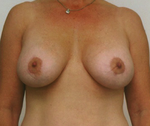 Breast Lift Before & After Patient #598