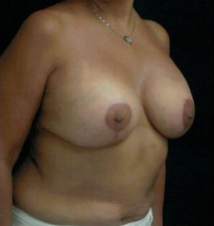 Breast Lift Before & After Patient #599