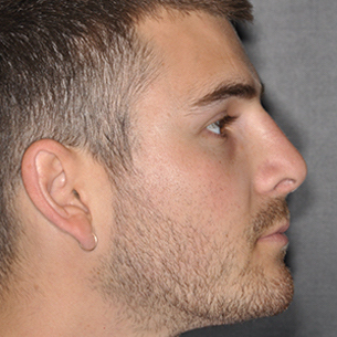 Rhinoplasty Before & After Patient #491