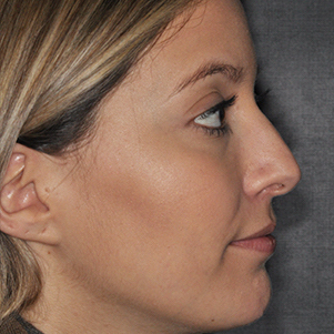 Rhinoplasty Before & After Patient #431