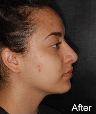 Rhinoplasty Before & After Patient #484