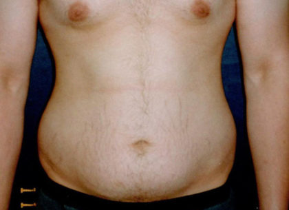 Liposuction Before & After Patient #1181