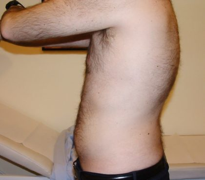 Liposuction Before & After Patient #1182