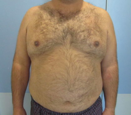 Liposuction Before & After Patient #1183