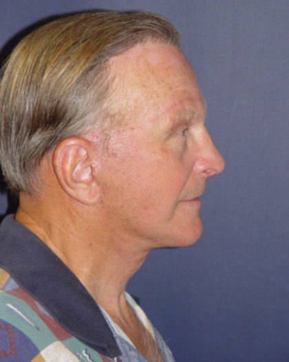 Facelift Before & After Patient #1150