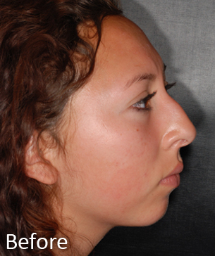 Rhinoplasty Before & After Patient #1445