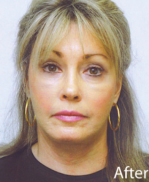 Facelift Before & After Patient #1617