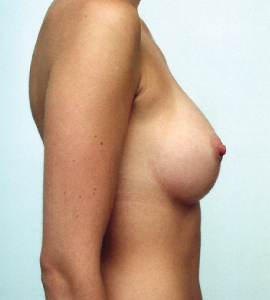 Breast Augmentation Before & After Patient #1733