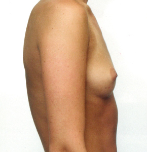 Breast Augmentation Before & After Patient #1742