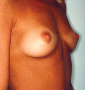 Breast Augmentation Before & After Patient #1749