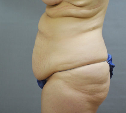 Tummy Tuck Before & After Patient #1667