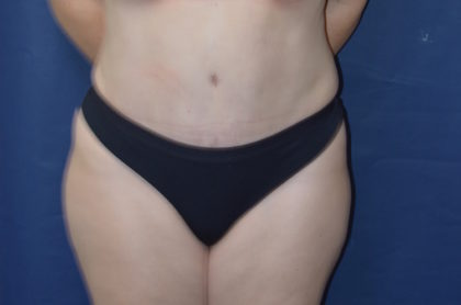 Liposuction Before & After Patient #1643