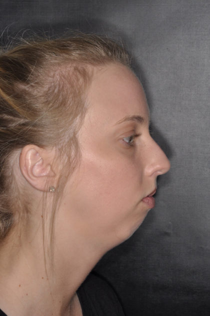 Chin Augmentation Before & After Patient #1786